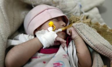 Criança com suspeita de cólera recebe tratamento em hospital no Iêmen Foto: MOHAMMED HUWAIS / AFP