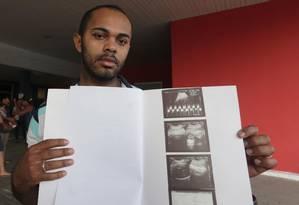 O pai de Arthur, Klebson, mostra a ultrassonografia do filho. Ele deveria nascer no próximo dia 13, mas os tiros abreviaram seu tempo dentro do útero Foto: Márcio Alves / Agência O Globo