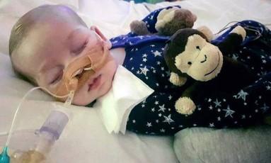 Charlie Gard, de 11 meses, tem doença rara que impede a respiração e a produção de energia Foto: Family handout / AP