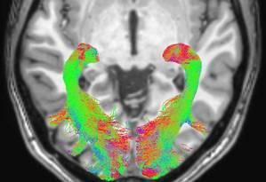 Médicos usaram ressonância magnética para identificar alterações no cérebro e no sistema visual dos pacientes Foto: Divulgação