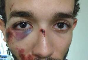 Estudante foi agredido dentro de delegacia por policial Foto: Divulgação