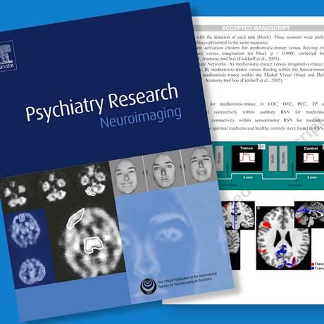 O artigo com os resultados da pesquisa foram publicados na revista científica Neuroimaging Foto: Reprodução