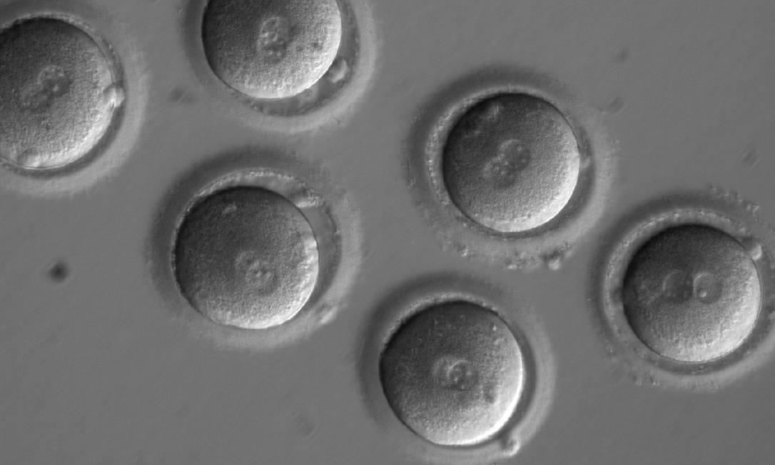 Imagem mostra ovócitos logo após a inseminação com o espermatozoide e a injeção da CRISPR-Cas9 Foto: / OHSU/NATURE