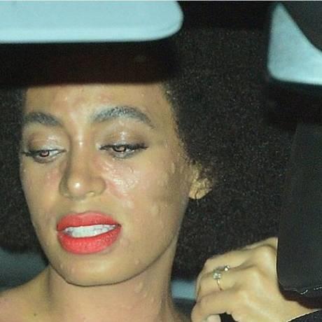 A reação alérgica de Solange Foto: Instagram