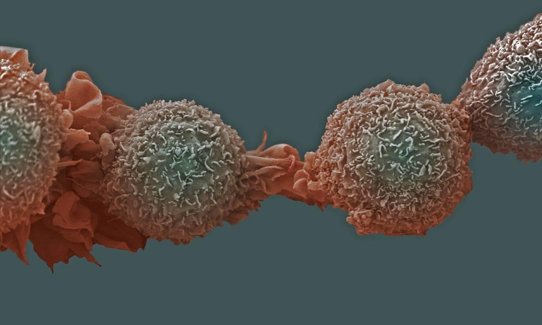 Células de câncer de pulmão: doença é um dos tipos que exame poderá ajudar a evitar ocorrência de 'falsos positivos' Foto: / Latinstock
