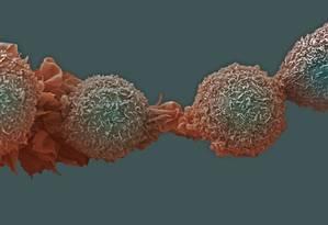 Células de câncer de pulmão: doença é um dos tipos que exame poderá ajudar a evitar ocorrência de 'falsos positivos' Foto: Latinstock