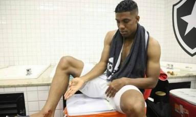 Berrío mostra as marcas da entrada de Pimpão em seu tornozelo direito Foto: Reprodução