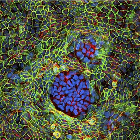 Imagem microscópicas de dois grupos de células cancerosas cercados de células normais: desvendar metabolismo de tumores é próximo passo na luta contra doença Foto: Latinstock