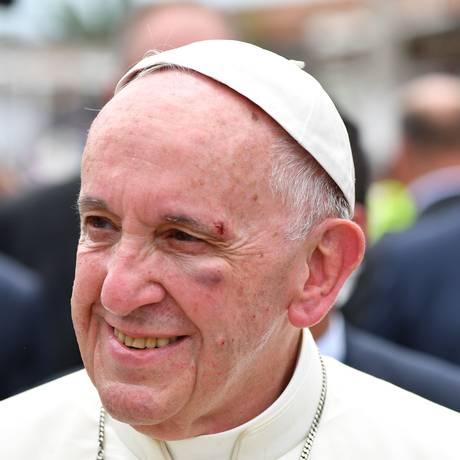 Papa Francisco é ferido no rosto em passagem pela Colômbia Foto: ALBERTO PIZZOLI / AFP