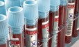 Testes de HIV: acesso é importante para enfrentar problema