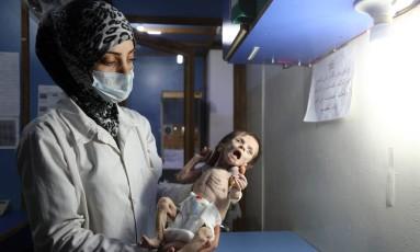 Bebê desnutrida na Síria Foto: AMER ALMOHIBANY / AFP