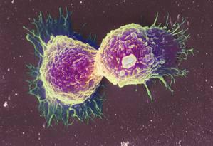 Células de câncer de mama: doença foi uma das mais citadas pelos brasileiros, graças em muito a campanhas como 'Outubro rosa' Foto: Latinstock