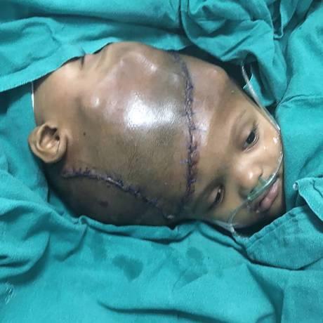 Gêmos unidos pela cabeça devido à condição rara foram separados em cirurgia na Índia Foto: AIIMS / AFP