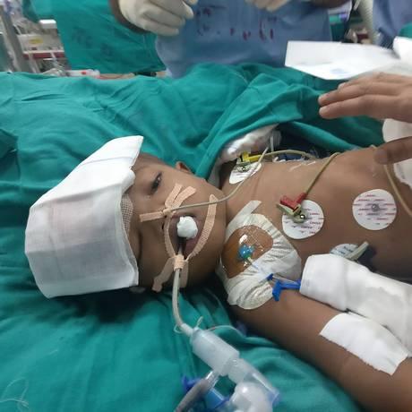 Menino indiano se recupera após cirurgia Foto: HANDOUT / AIIMS / AFP