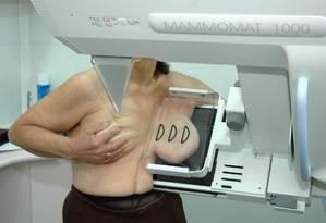 Exame de mamografia para detecção de câncer de mama Foto: 15-10-2010 / Divulgação/Femama
