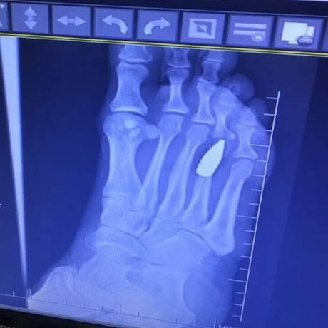 Imagens da bala de fuzil alojada no pé direito da jornalista Márcia Mendel, atingida quando estava no terraço brindando a chegada de 2018 Foto: Arquivo pessoal