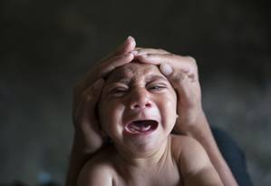 Bebê José Wesley nasceu em janeiro de 2016, em Pernambuco, com microcefalia em decorrência de uma infecção por zika quando ainda estava na barriga da mãe. Muitos fetos morrem por aborto espontâneo logo no início da gestação Foto: Felipe Dana/AP