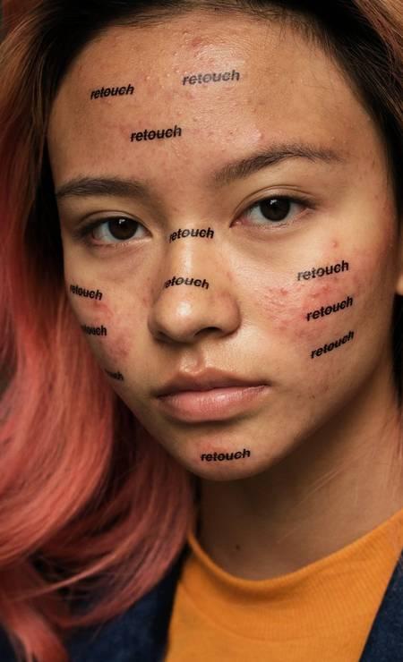 Ele está criando uma série de retratos para tentar normalizar a acne mostrando-a em seu estado natural Foto: Peter DeVito