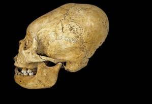Crânio alongado, fino no topo, característico de alguns membros na civilização Collagua, que viveu no Peru antes dos incas: pesquisador descobriu que tal modificação craniana servia para sinalizar status Foto: Creative Commons