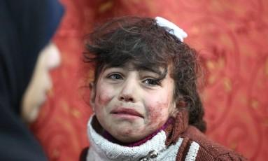 A pequena Hala, de 9 anos, recebe tratamento após ser ferida em bobmardeio em Ghouta Oriental Foto: AMER ALMOHIBANY / AFP