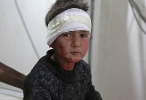 Criança síria de cinco anos em um hospital de Kafr Batna, após ferimento causado por ataque aéreo Foto: AMMAR SULEIMAN / AFP