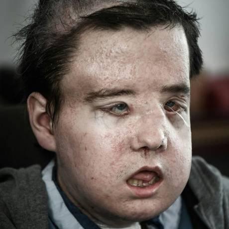 Jérôme Hamon, a primeira pessoa a passar por dois transplantes de rosto Foto: Philippe López / AFP