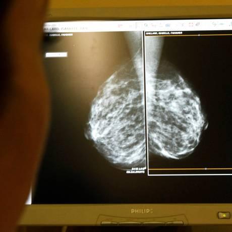 Médico observa imagem de mamografias em centro de diagnóstico de câncer nos seios na França: esperança de evitar que doença se espalhe e saia do alcance dos tratamentos convencionais Foto: REUTERS/Eric Gaillard/04-01-2008