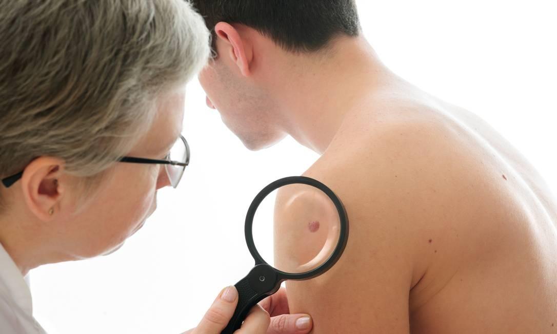 Dermatologista analisa sinal na pele de paciente: inteligência artificial teve desempenho melhor no diagnóstico de lesões Foto: Arquivo