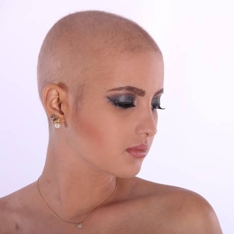 Qual o tipo de tratamento a ser feito quando o diganóstico é precoce é uma grande dúvida das pacientes do câncer de mama Foto: Pixabay