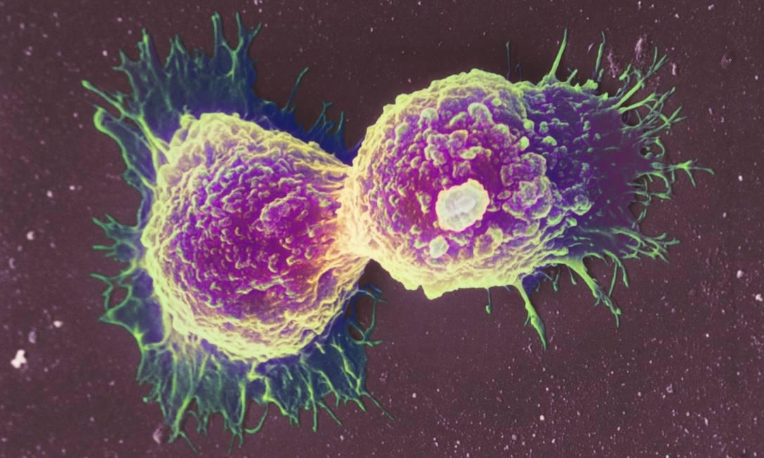 Células de câncer de mama: doença jpa tinha se espalhado pelo organismo e prognóstico era de que mulher tivesse apenas mais alguns meses de vida Foto: / Science Photo Library/Latinstock