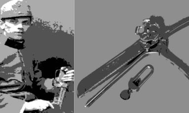 Inúmeros cirurgiões contribuíram para o desenvolvimento da anastomose, técnica de religar os órgãos seccionados, sendo os húngaros Húmer Húltl e Aladár von Petz seus grandes inovadores Foto: Ilustração