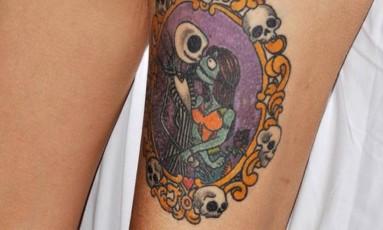 Médicos suspeitam que tatuagem provocou inflamação no músculo da coxa de paciente Foto: BMJ
