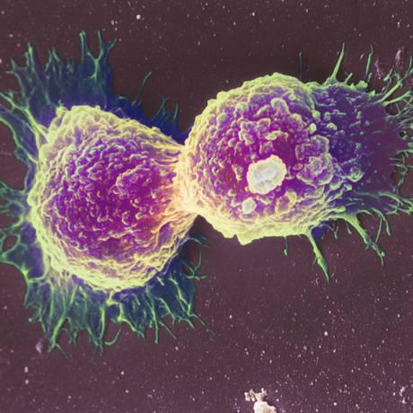 Divisão de células de câncer de mama Foto: Science Photo Library - Latinstock