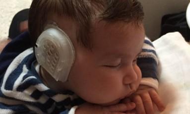 Benício Fernandes Jacoto, de 1 ano, corrigiu uma orelha de abano com o earwell, novo dispositivo que evita cirurgia Foto: Arquivo pessoal / .