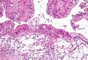Mulheres com câncer no ovário podem ter a fertilidade comprometida Foto: WIKIMEDIA