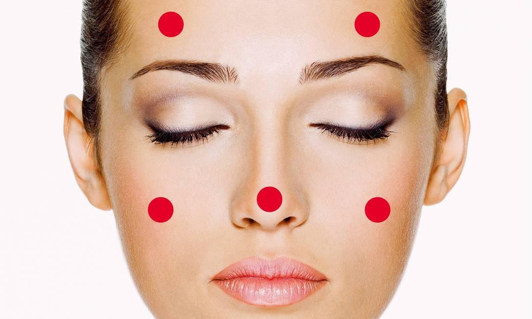 Acne adulta: problema hormonal, de estresse ou uso de cosméticos indevidos Foto: Shutterstock