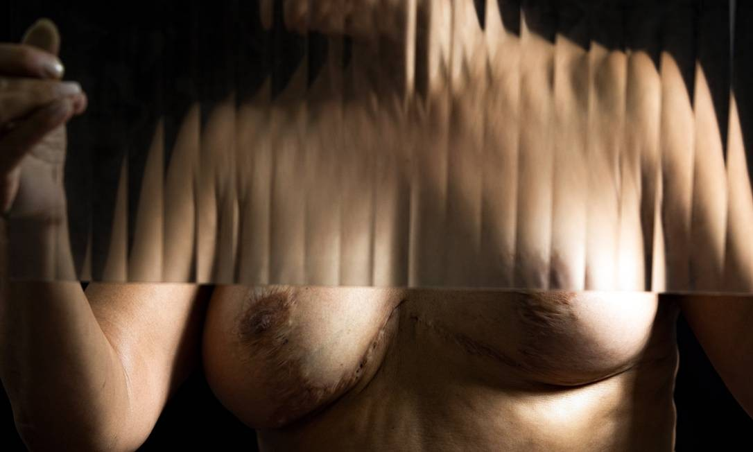 """Vergonha. As cicatrizes e as queimaduras deixadas por quatro cirurgias estéticas nos seios de uma paciente estrangeira: """"Hoje, não uso decote nem namoro"""" Foto: Ana Branco / Agência O Globo"""