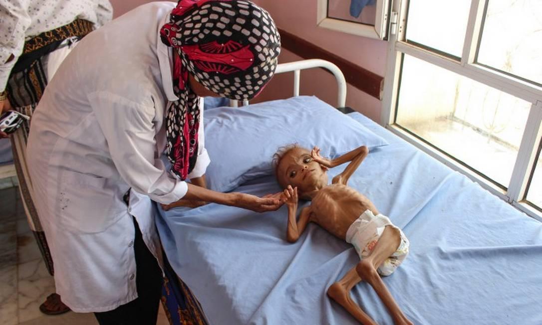 Enfermeira cuida de criança iemenita desnutrida em capa de hospital Foto: ESSA AHMED / AFP