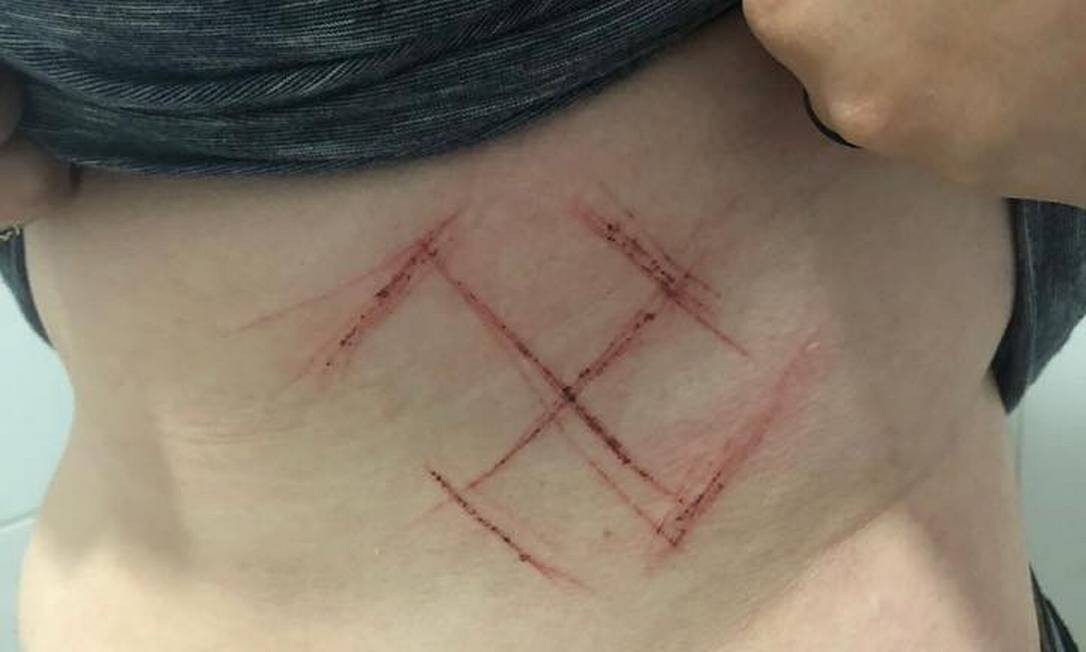 Jovem de 19 anos, moradora de Porto Alegre, foi marcada com um canivete Foto: Reprodução