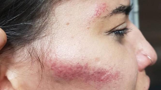 Os hematomas no rosto de Luana Foto: Arquivo pessoal