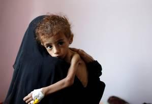 Mulher carrega no colo criança subnutrida num hospital em Sanaa, capital do Iêmen Foto: KHALED ABDULLAH / REUTERS