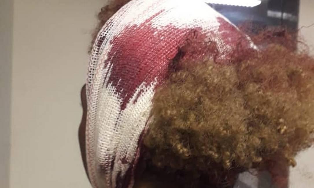 Estudante do Visconde de Cairu levou oito pontos na cabeça após ser agredido dentro da escola Foto: Reprodução