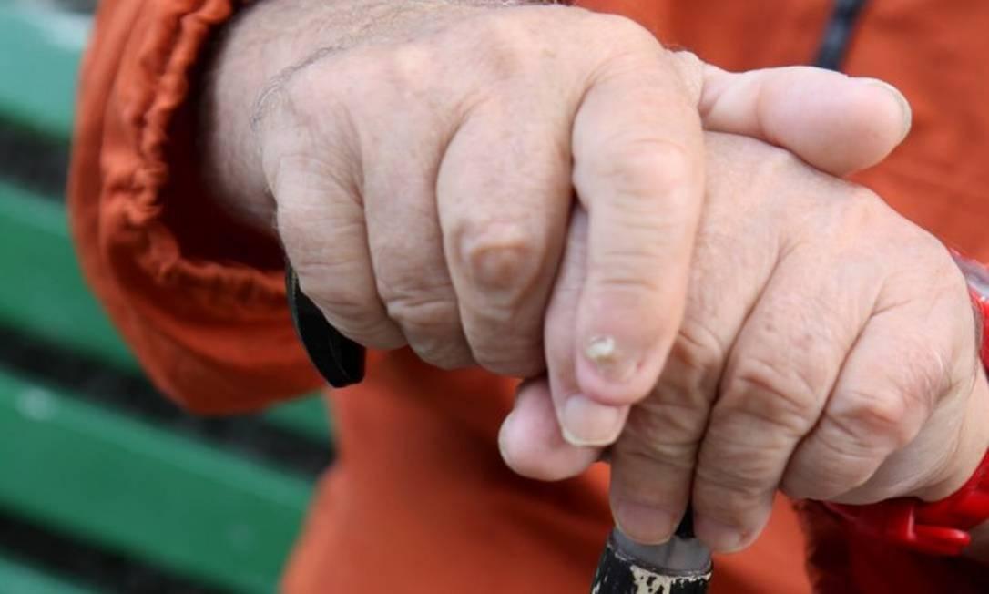 Demência pode estar associada à maior pressão arterial, diz estudo Foto: Camilla Maia / Agência O Globo