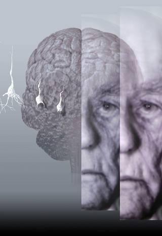 Cientistas brasileiros descobrem como prevenir Alzheimer - Jornal O Globo