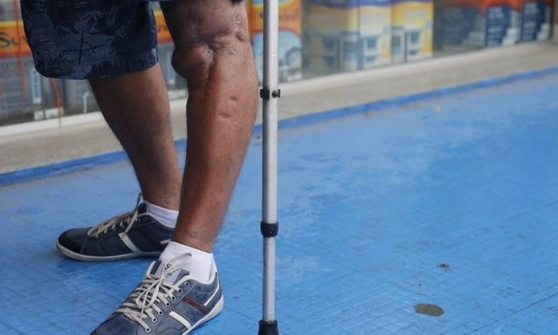 Mais de 200 mil aposentadorias por invalidez foram canceladas após o pente-fino Foto: Arquivo- Agência O Globo