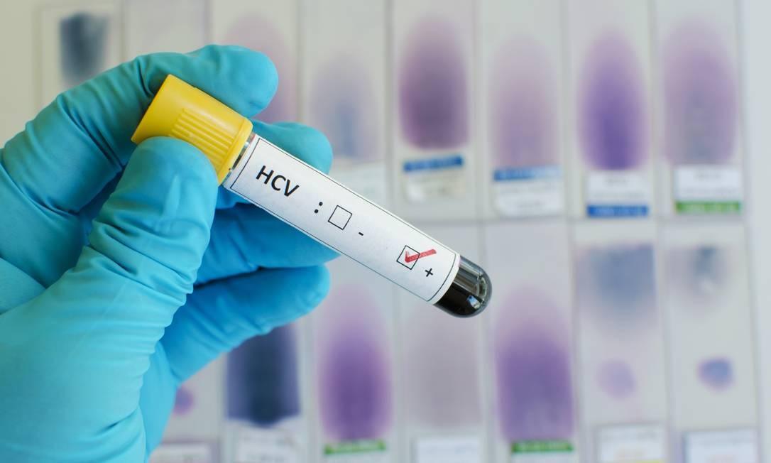 Teste de hepatite C: ampliação do diagnóstico é quarta intervenção com potencial de forte efeito no fim da epidemia da doença Foto: Shutterstock