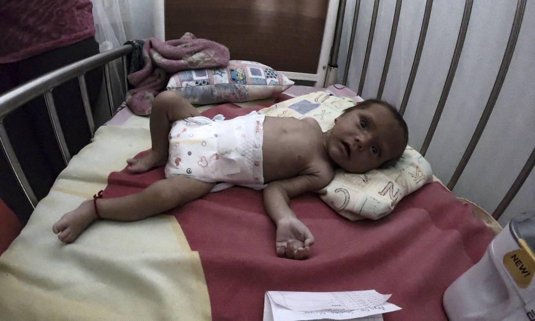 Um bebê desnutrido permanece em um leito de hospital em Maracay, estado de Aragua, Venezuela. A falta de alimentos é agravada pela inflação, que em 2018 passou de 1.000.000% Foto: YURI CORTEZ / AFP