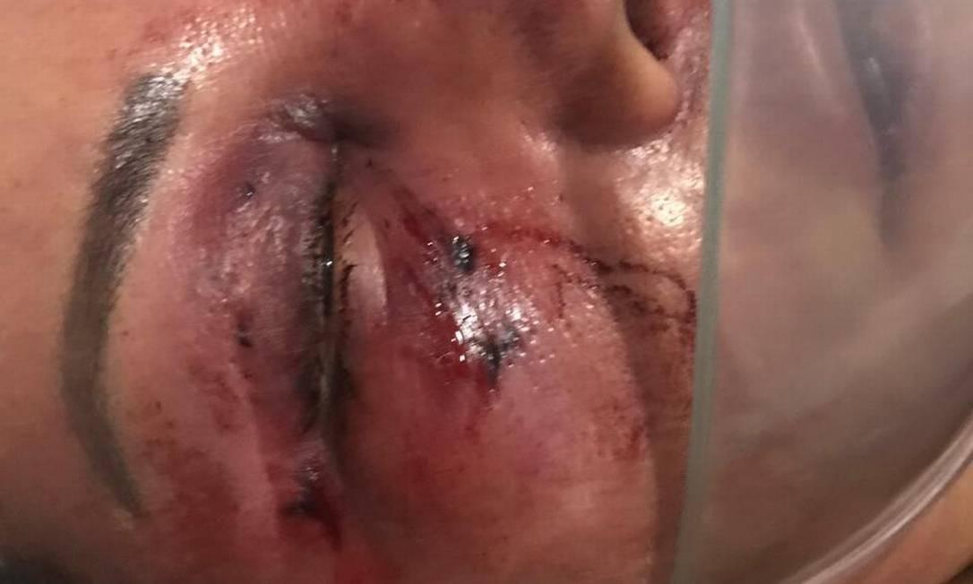 Elaine teve fraturas no maxilar, no globo ocular e no nariz, o que dificulta sua respiração. Ela também teve os dentes quebrados Foto: Arquivo pessoal