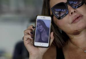 Elaine Caparroz, paisagista, foi espancada durante quatro horas Foto: Custódio Coimbra / Agência O Globo