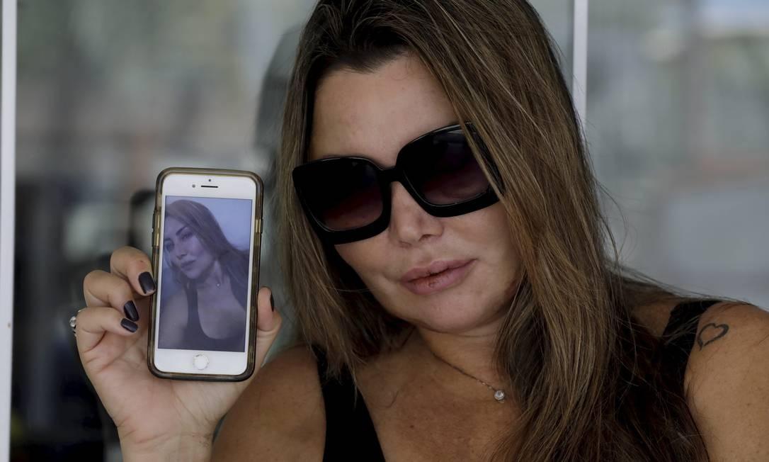 Elaine Caparroz, paisagista, foi espancada por Vinicius Batista Serra, durante quatro horas em seu apartamento na Barra. Foto Custodio Coimbra Foto: Custódio Coimbra / Agência O Globo